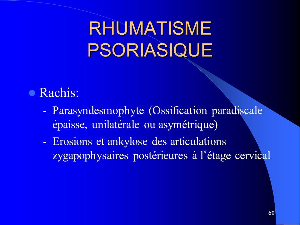 60 RHUMATISME PSORIASIQUE Rachis: - Parasyndesmophyte (Ossification paradiscale épaisse, unilatérale ou asymétrique) - Erosions et ankylose des articu