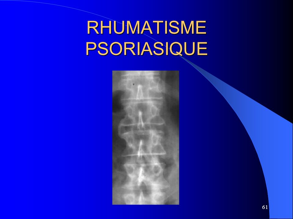 61 RHUMATISME PSORIASIQUE