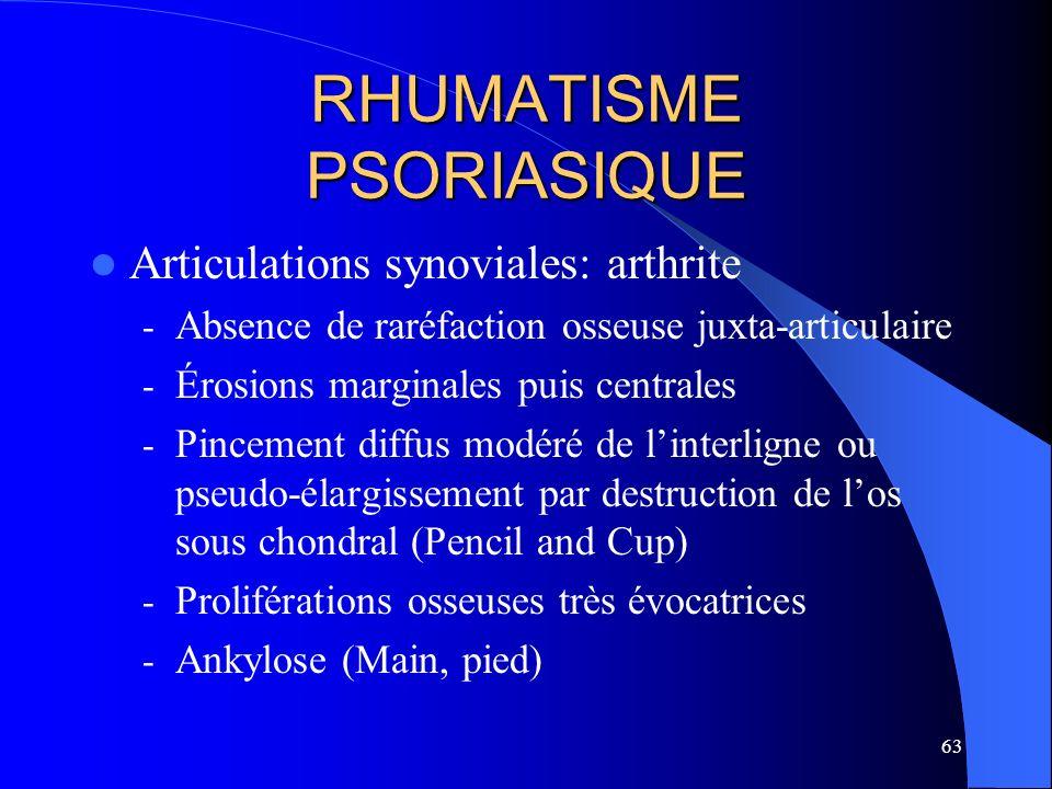 63 RHUMATISME PSORIASIQUE Articulations synoviales: arthrite - Absence de raréfaction osseuse juxta-articulaire - Érosions marginales puis centrales -
