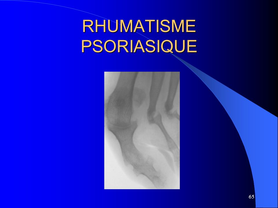 65 RHUMATISME PSORIASIQUE