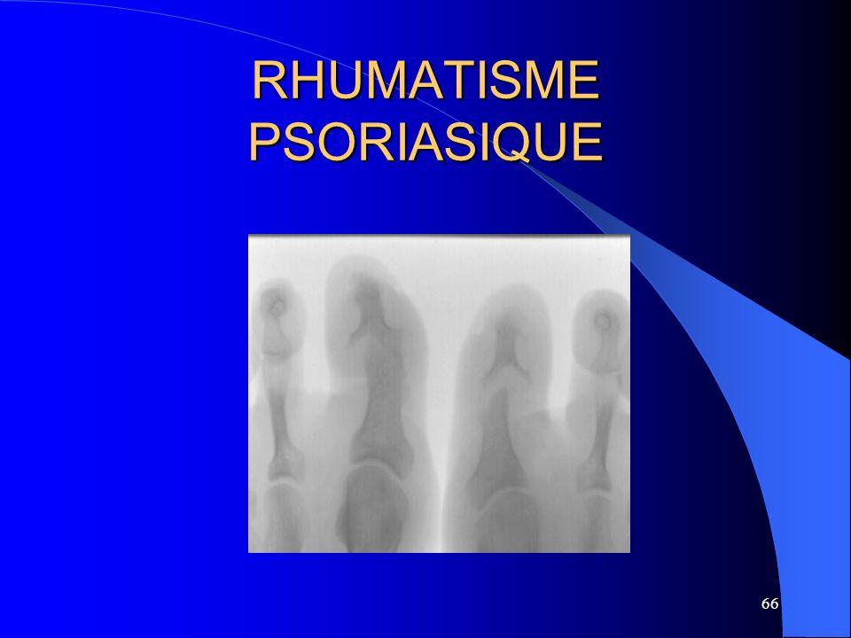 66 RHUMATISME PSORIASIQUE