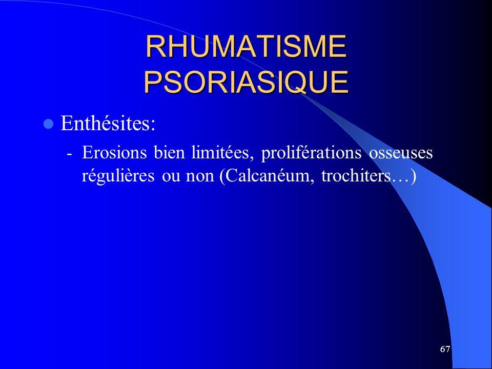 67 RHUMATISME PSORIASIQUE Enthésites: - Erosions bien limitées, proliférations osseuses régulières ou non (Calcanéum, trochiters…)