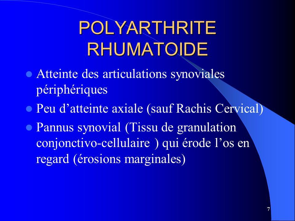 7 POLYARTHRITE RHUMATOIDE Atteinte des articulations synoviales périphériques Peu datteinte axiale (sauf Rachis Cervical) Pannus synovial (Tissu de gr