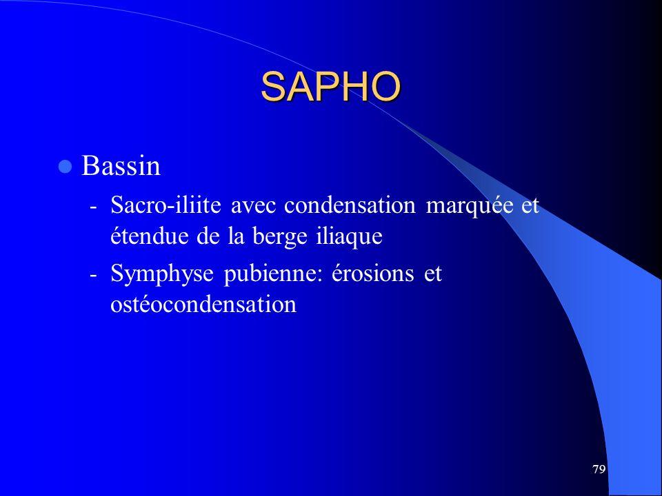 79 SAPHO Bassin - Sacro-iliite avec condensation marquée et étendue de la berge iliaque - Symphyse pubienne: érosions et ostéocondensation
