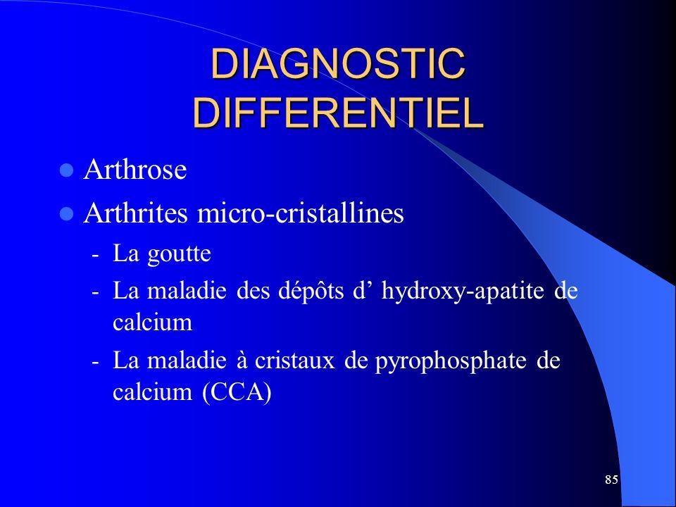 85 DIAGNOSTIC DIFFERENTIEL Arthrose Arthrites micro-cristallines - La goutte - La maladie des dépôts d hydroxy-apatite de calcium - La maladie à crist