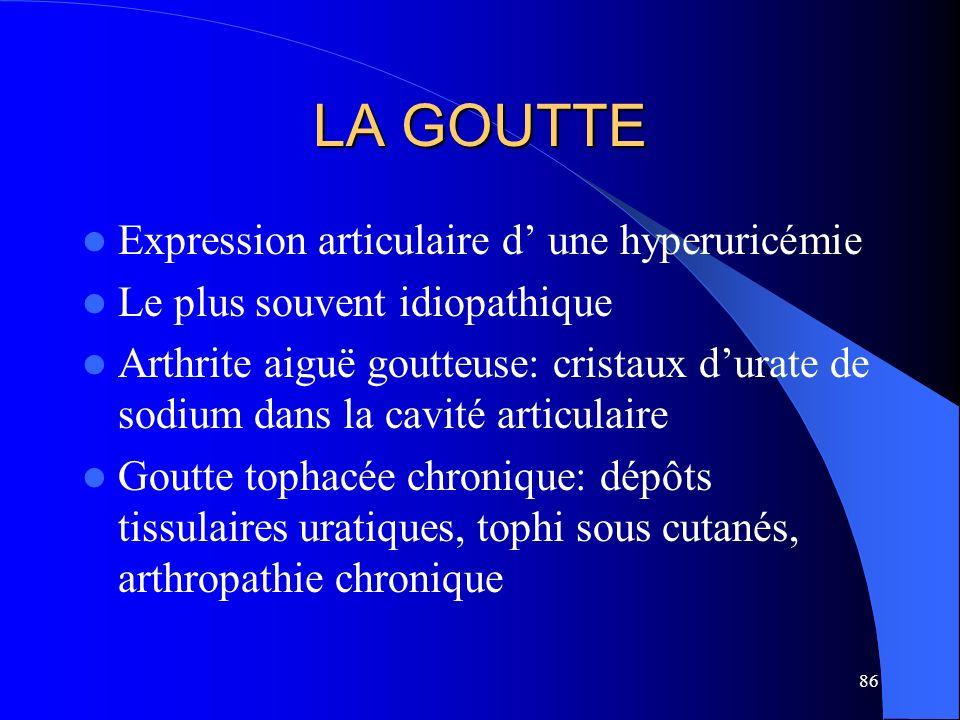 86 LA GOUTTE Expression articulaire d une hyperuricémie Le plus souvent idiopathique Arthrite aiguë goutteuse: cristaux durate de sodium dans la cavit