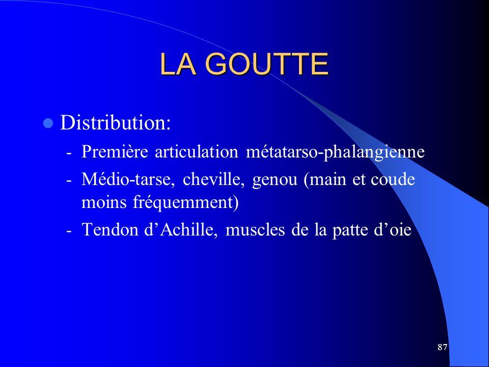 87 LA GOUTTE Distribution: - Première articulation métatarso-phalangienne - Médio-tarse, cheville, genou (main et coude moins fréquemment) - Tendon dA