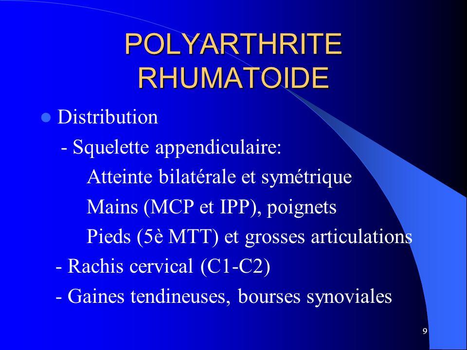 30 POLYARTHRITE RHUMATOIDE Signes négatifs - IPD rarement atteintes - Enthèses peu atteintes - Pas de prolifération osseuse