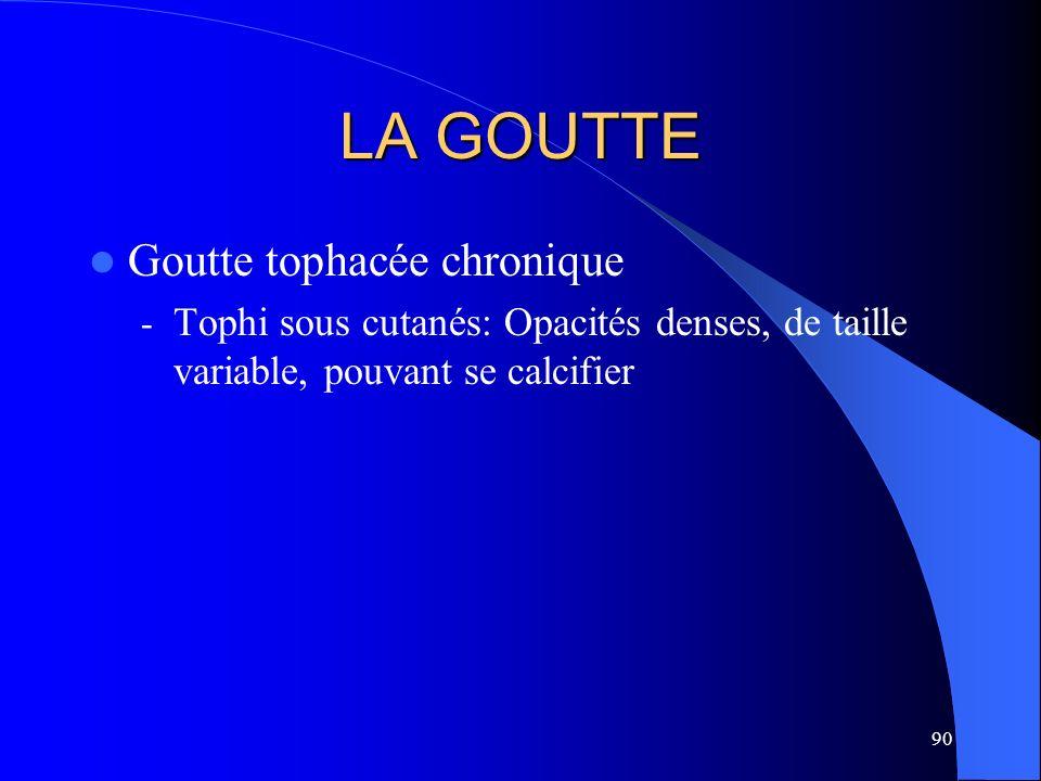 90 LA GOUTTE Goutte tophacée chronique - Tophi sous cutanés: Opacités denses, de taille variable, pouvant se calcifier