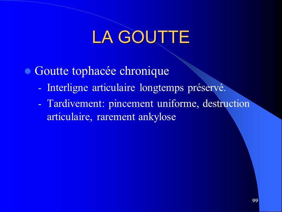 99 LA GOUTTE Goutte tophacée chronique - Interligne articulaire longtemps préservé. - Tardivement: pincement uniforme, destruction articulaire, rareme