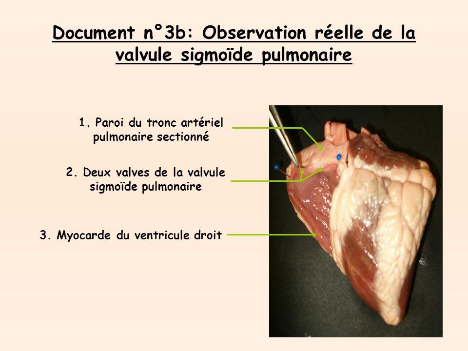 Document n°3b: Observation réelle de la valvule sigmoïde pulmonaire 1.