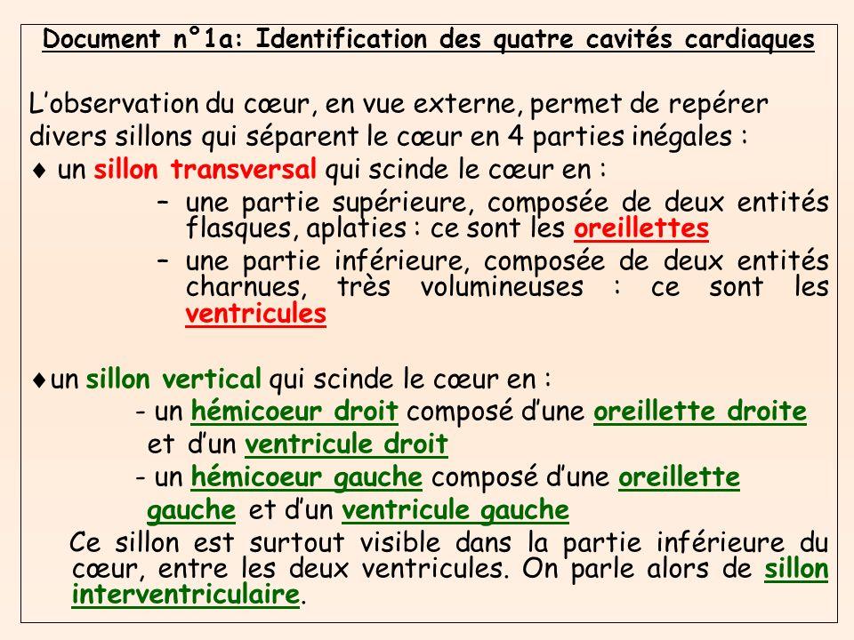 Etape n°2: Etude de lappareil valvulaire de lhémicoeur gauche 4) A partir des informations recueillies, légender le document n°3c.