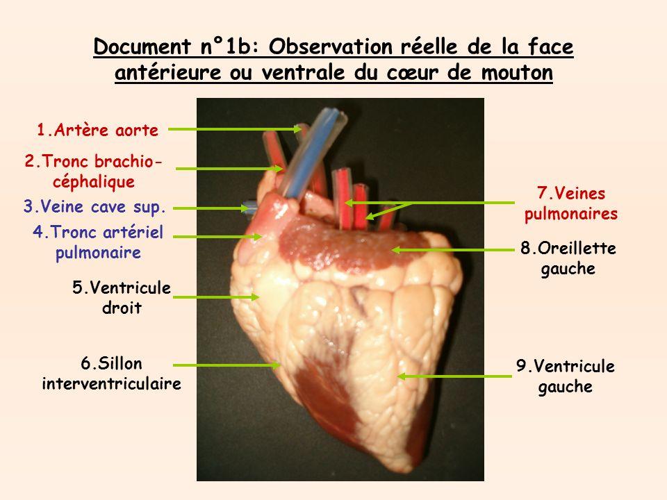 Document n°1b: Représentation schématique de la face antérieure ou ventrale du coeur 1.Artère carotide primitive gauche 2.Tronc brachio-céphalique 3.Artère aorte 4.Artère pulmonaire droite 5.