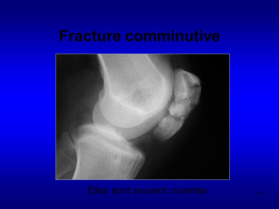 100 Fracture comminutive Elles sont souvent ouvertes