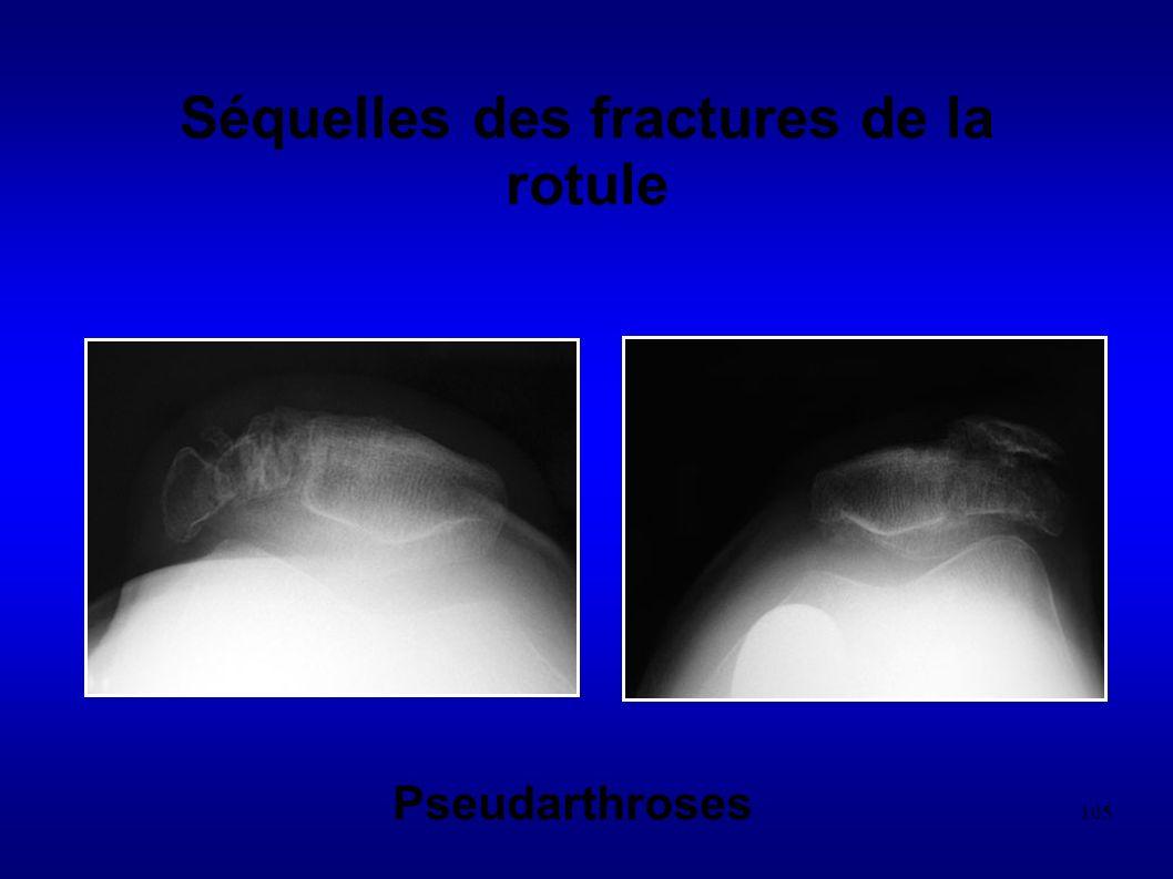 105 Séquelles des fractures de la rotule Pseudarthroses