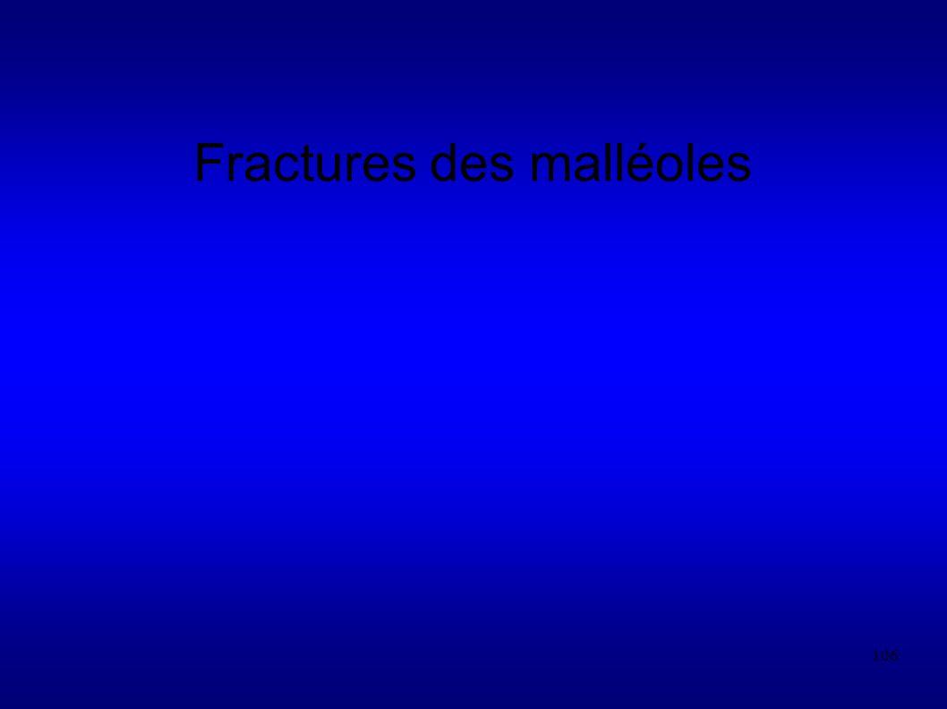 106 Fractures des malléoles