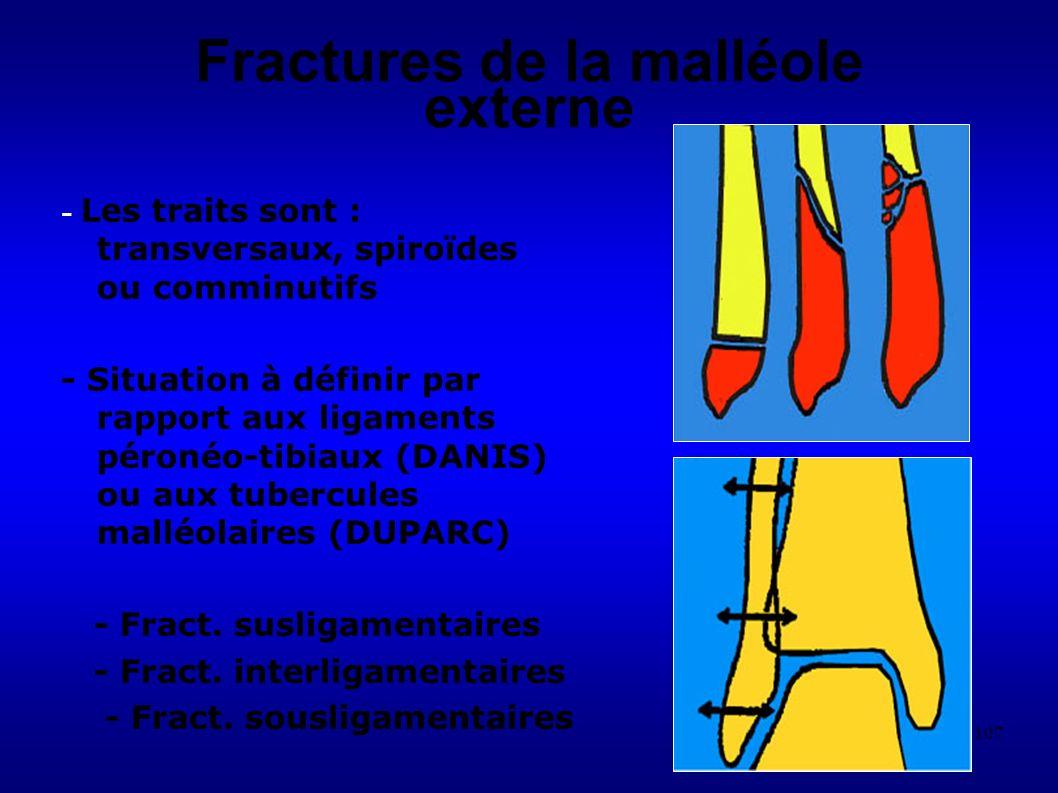 107 Fractures de la malléole externe - Les traits sont : transversaux, spiroïdes ou comminutifs - Situation à définir par rapport aux ligaments péronéo-tibiaux (DANIS) ou aux tubercules malléolaires (DUPARC) - Fract.