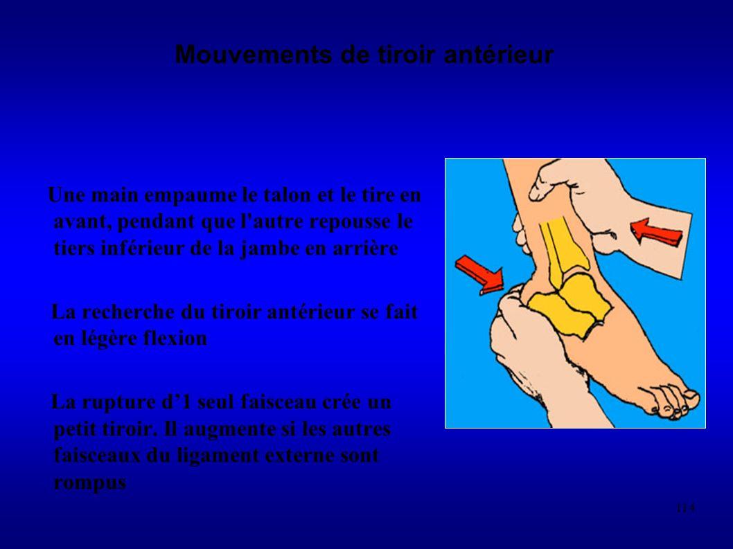 114 Mouvements de tiroir antérieur Une main empaume le talon et le tire en avant, pendant que l autre repousse le tiers inférieur de la jambe en arrière La recherche du tiroir antérieur se fait en légère flexion La rupture d1 seul faisceau crée un petit tiroir.