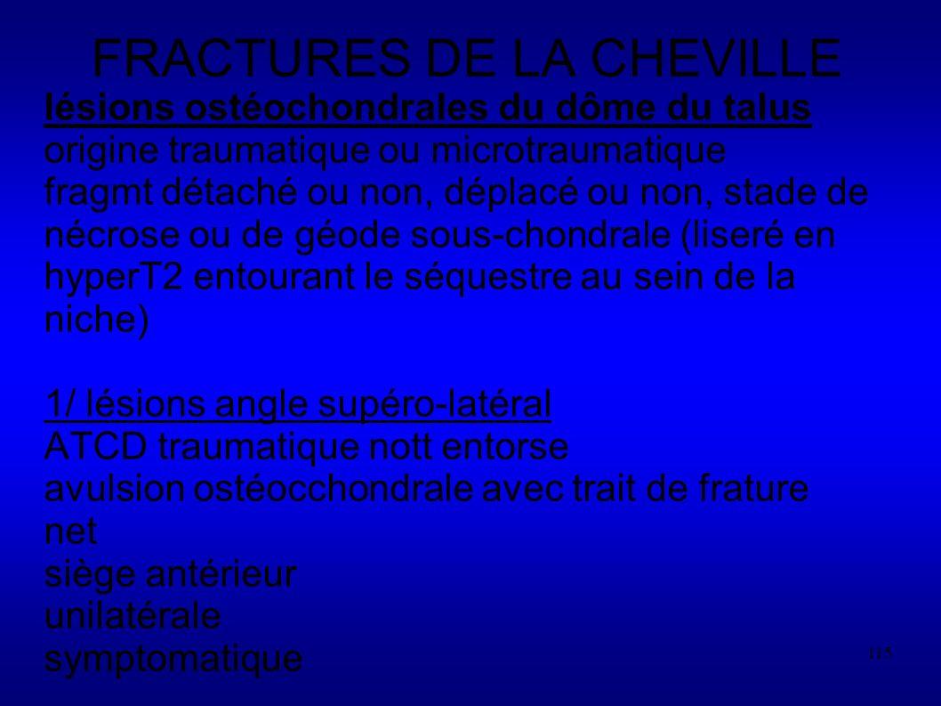 115 FRACTURES DE LA CHEVILLE lésions ostéochondrales du dôme du talus origine traumatique ou microtraumatique fragmt détaché ou non, déplacé ou non, stade de nécrose ou de géode sous-chondrale (liseré en hyperT2 entourant le séquestre au sein de la niche) 1/ lésions angle supéro-latéral ATCD traumatique nott entorse avulsion ostéocchondrale avec trait de frature net siège antérieur unilatérale symptomatique