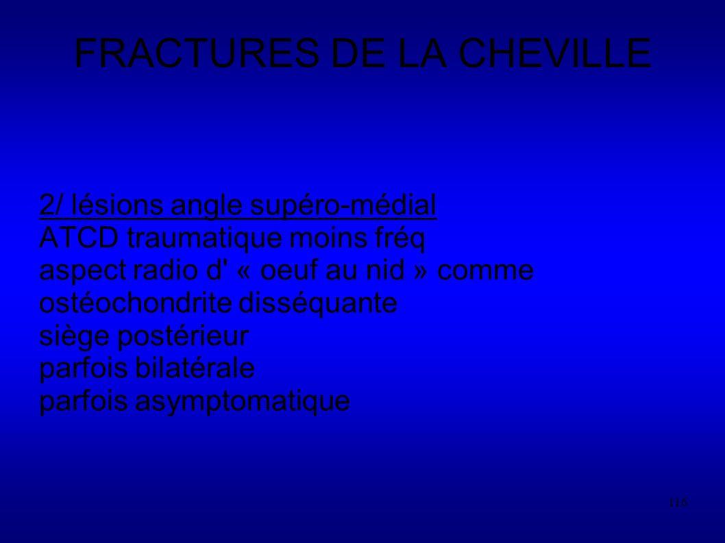 116 FRACTURES DE LA CHEVILLE 2/ lésions angle supéro-médial ATCD traumatique moins fréq aspect radio d « oeuf au nid » comme ostéochondrite disséquante siège postérieur parfois bilatérale parfois asymptomatique