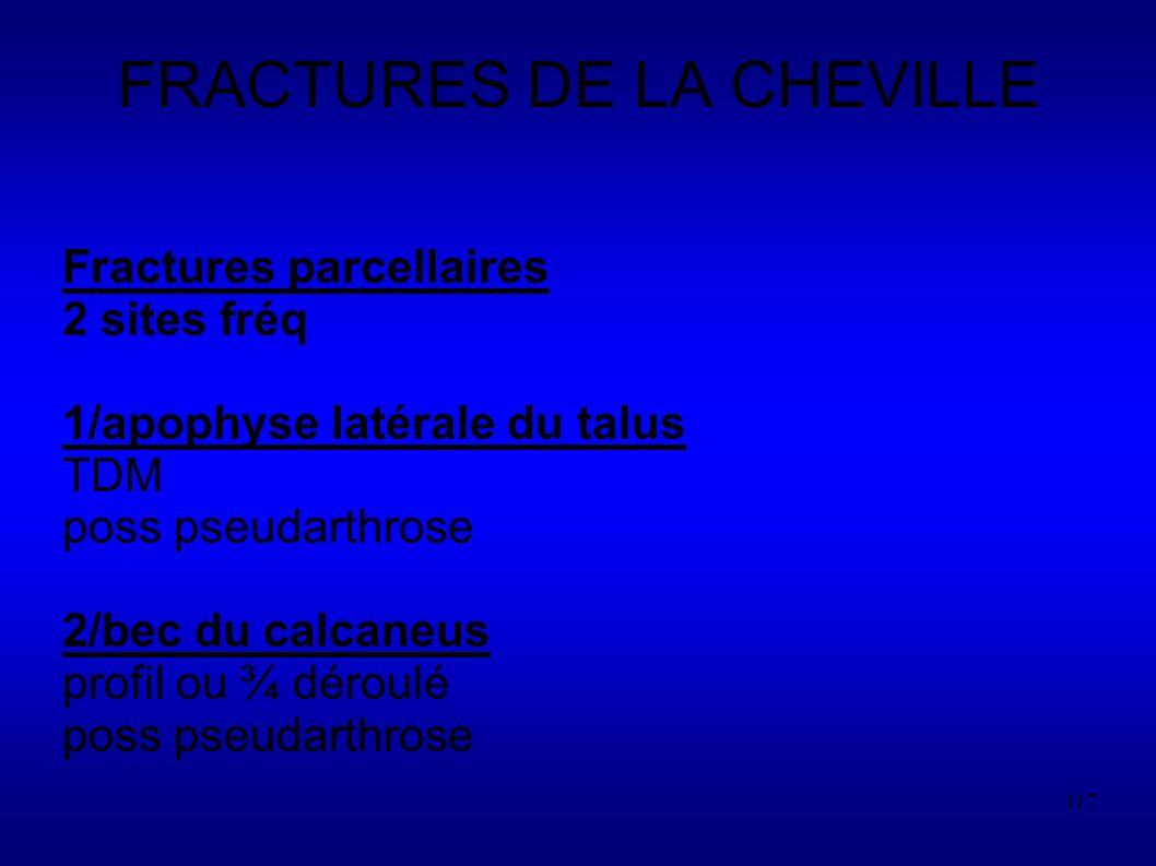 117 FRACTURES DE LA CHEVILLE Fractures parcellaires 2 sites fréq 1/apophyse latérale du talus TDM poss pseudarthrose 2/bec du calcaneus profil ou ¾ déroulé poss pseudarthrose