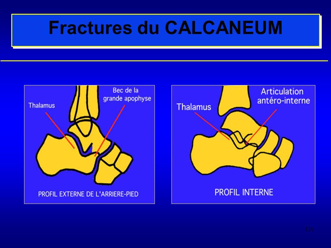 120 Fractures du CALCANEUM