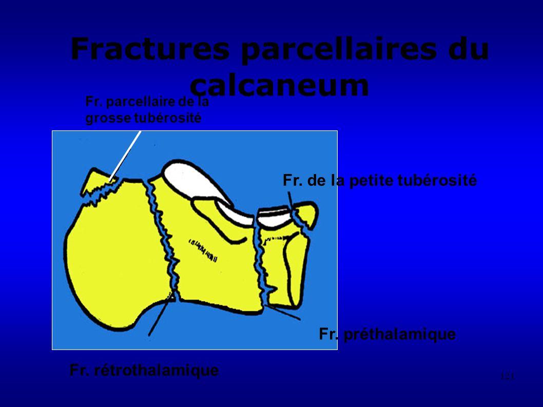 121 Fractures parcellaires du calcaneum Fr.parcellaire de la grosse tubérosité Fr.