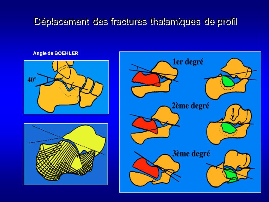 123 Enfoncement vertical - horizontal Déplacement des fractures thalamiques de profil Angle de BÖEHLER
