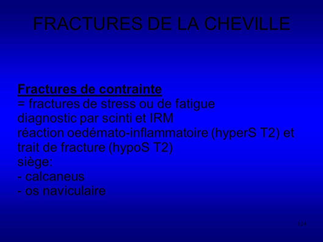 124 FRACTURES DE LA CHEVILLE Fractures de contrainte = fractures de stress ou de fatigue diagnostic par scinti et IRM réaction oedémato-inflammatoire (hyperS T2) et trait de fracture (hypoS T2) siège: - calcaneus - os naviculaire