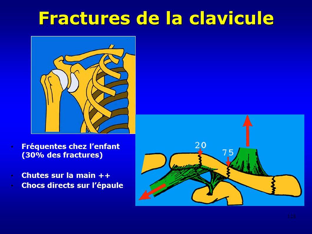 128 Fractures de la clavicule Fréquentes chez lenfant (30% des fractures) Chutes sur la main ++ Chocs directs sur lépaule