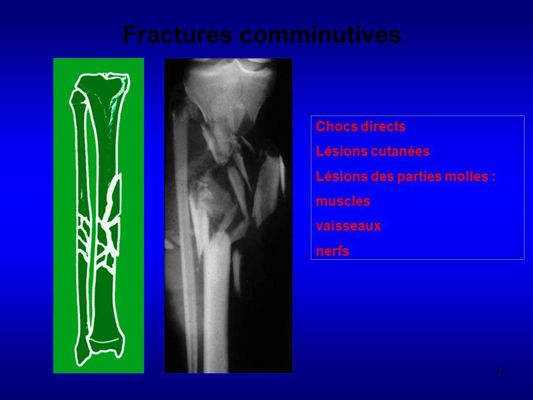 13 Fractures comminutives Chocs directs Lésions cutanées Lésions des parties molles : muscles vaisseaux nerfs