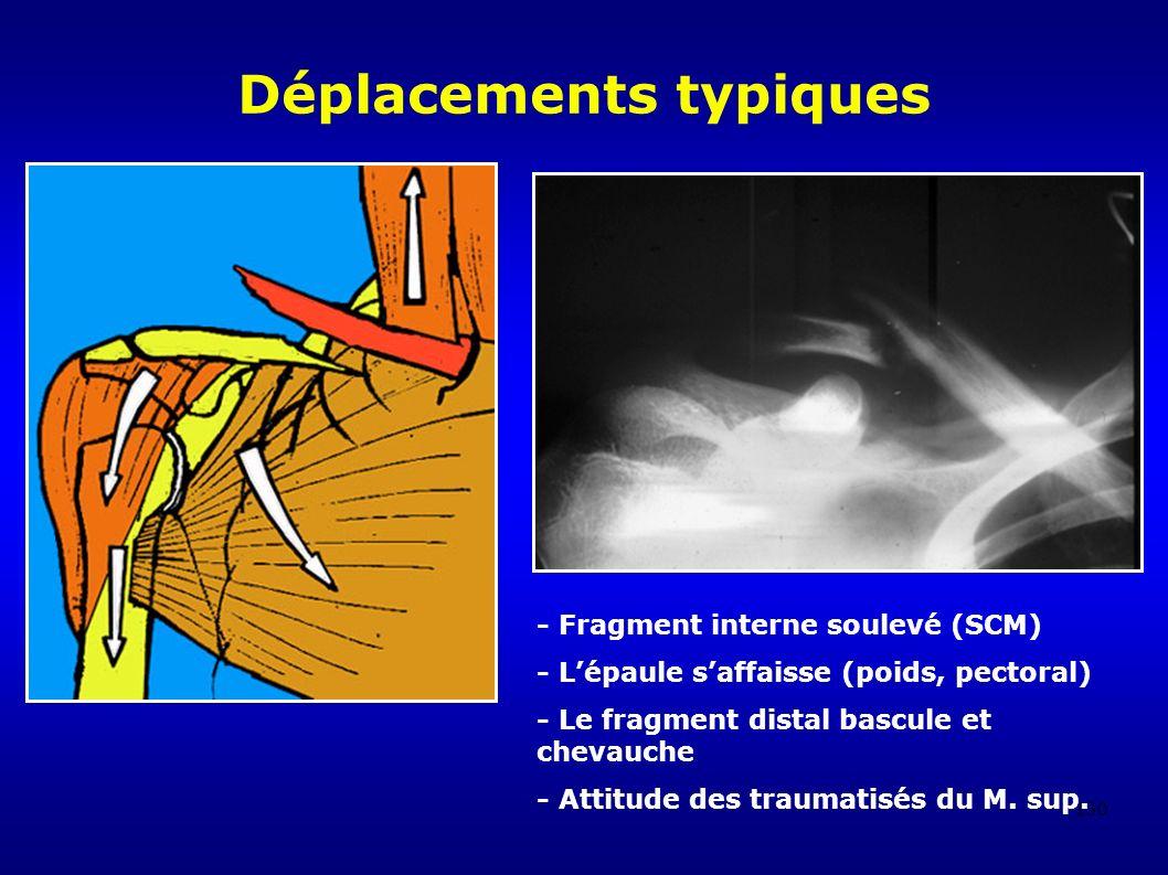 130 Déplacements typiques - Fragment interne soulevé (SCM) - Lépaule saffaisse (poids, pectoral) - Le fragment distal bascule et chevauche - Attitude des traumatisés du M.