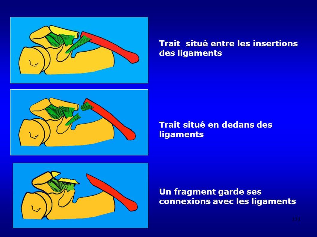 131 Trait situé entre les insertions des ligaments Trait situé en dedans des ligaments Un fragment garde ses connexions avec les ligaments