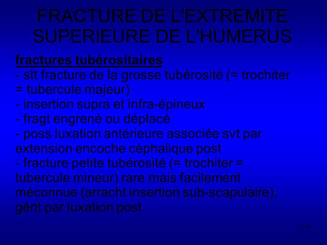 136 FRACTURE DE L EXTREMITE SUPERIEURE DE L HUMERUS fractures tubérositaires - stt fracture de la grosse tubérosité (= trochiter = tubercule majeur) - insertion supra et infra-épineux - fragt engrené ou déplacé - poss luxation antérieure associée svt par extension encoche céphalique post - fracture petite tubérosité (= trochiter = tubercule mineur) rare mais facilement méconnue (arracht insertion sub-scapulaire), gént par luxation post
