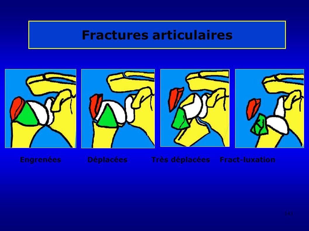 143 Fractures articulaires Engrenées Déplacées Très déplacées Fract-luxation