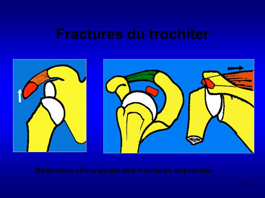 145 Fractures du trochiter Réduction chirurgicale des fractures déplacées