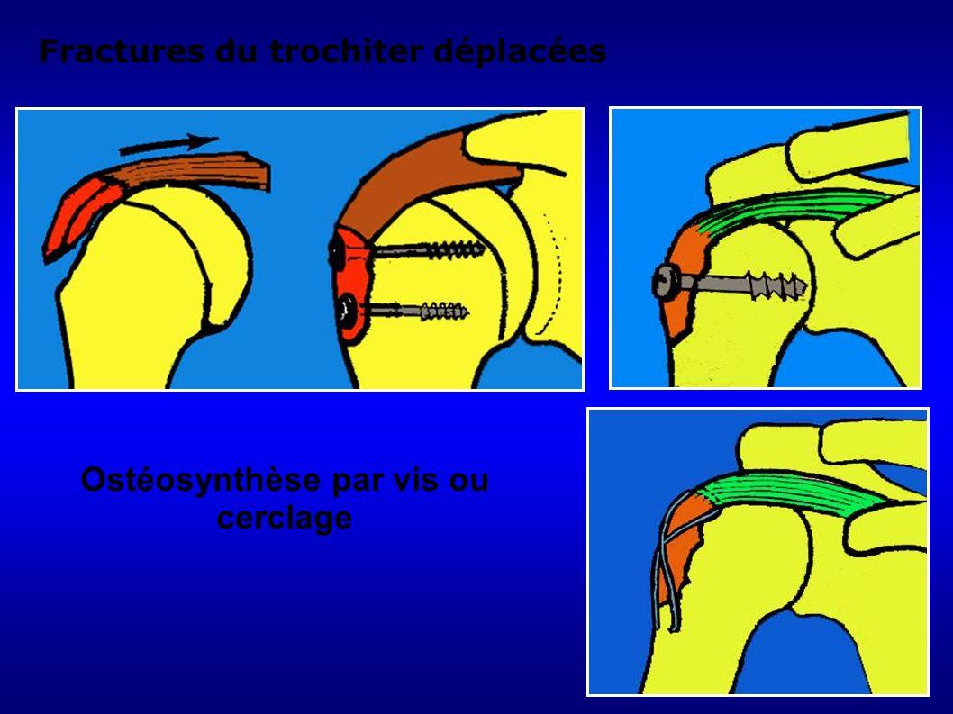 146 Ostéosynthèse par vis ou cerclage Fractures du trochiter déplacées