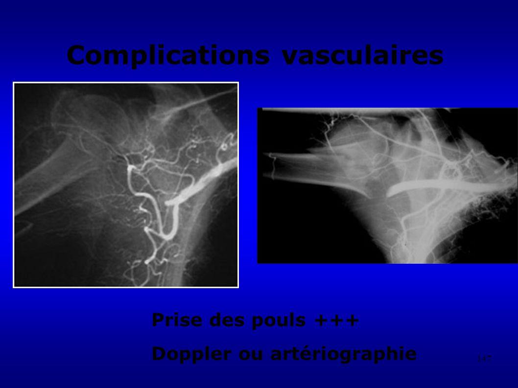 147 Complications vasculaires Prise des pouls +++ Doppler ou artériographie
