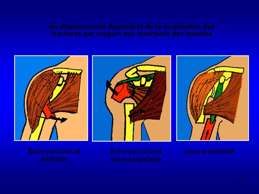 152 les déplacements dépendent de la localisation des fractures par rapport aux insertions des muscles Entre pectoral et deltoïde Entre pectoral et sous-scapulaire sous le deltoïde