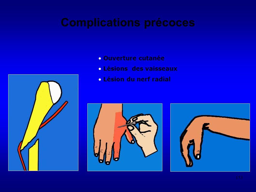 153 Complications précoces Ouverture cutanée Lésions des vaisseaux Lésion du nerf radial