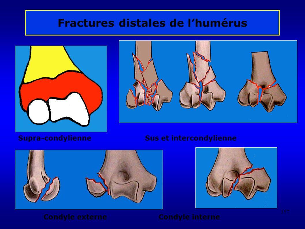 157 Fractures distales de lhumérus Supra-condylienne Sus et intercondylienne Condyle externeCondyle interne