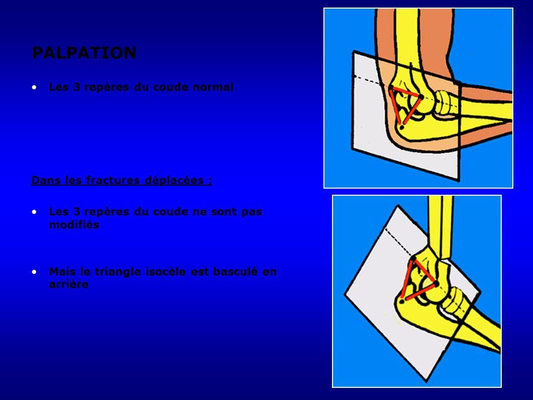 161 PALPATION Les 3 repères du coude normal Dans les fractures déplacées : Les 3 repères du coude ne sont pas modifiés Mais le triangle isocèle est basculé en arrière