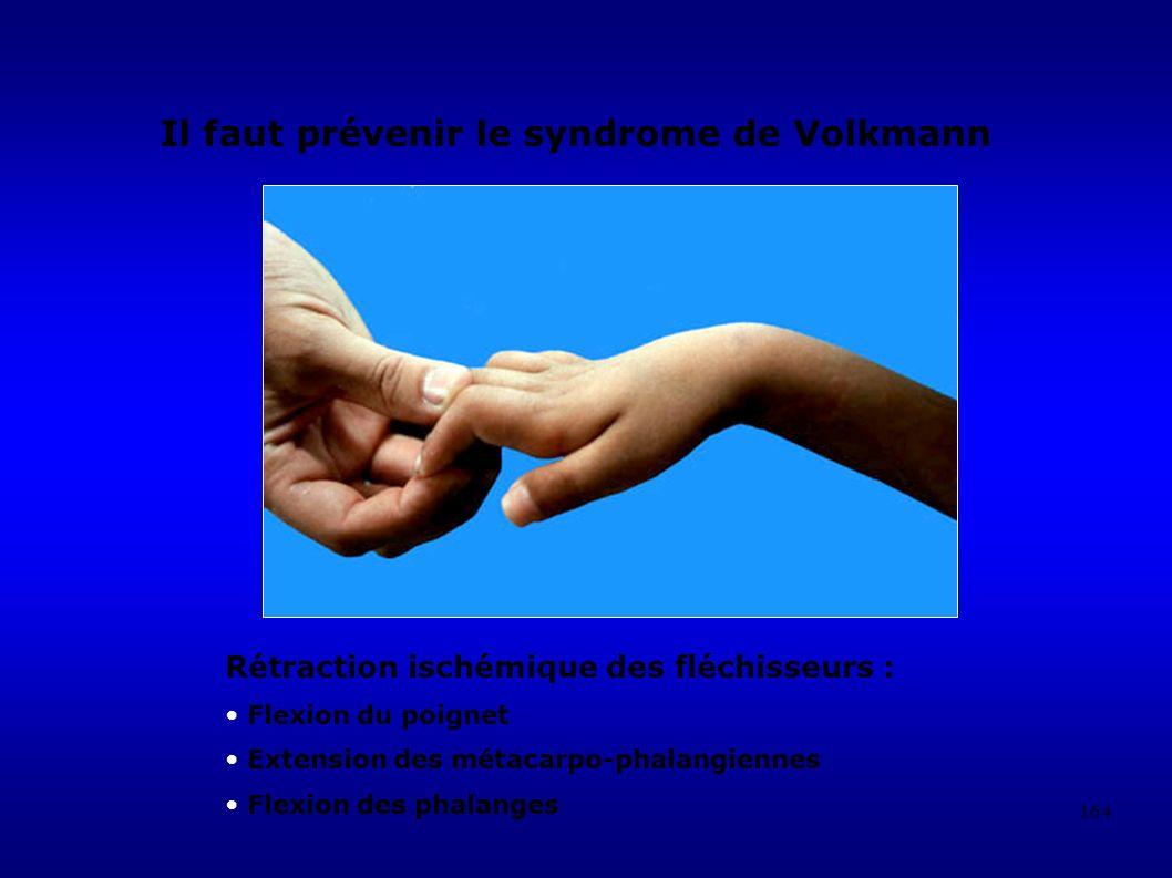 164 Rétraction ischémique des fléchisseurs : Flexion du poignet Extension des métacarpo-phalangiennes Flexion des phalanges Il faut prévenir le syndrome de Volkmann