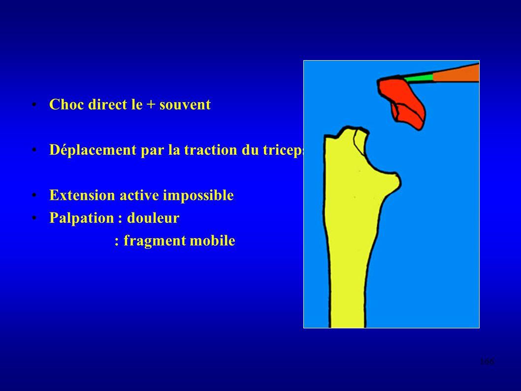 166 Choc direct le + souvent Déplacement par la traction du triceps Extension active impossible Palpation : douleur : fragment mobile