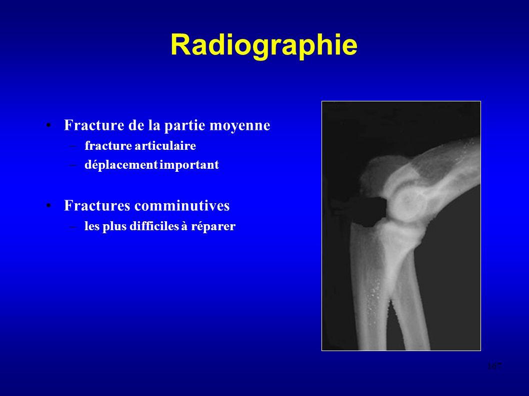 167 Radiographie Fracture de la partie moyenne –fracture articulaire –déplacement important Fractures comminutives –les plus difficiles à réparer