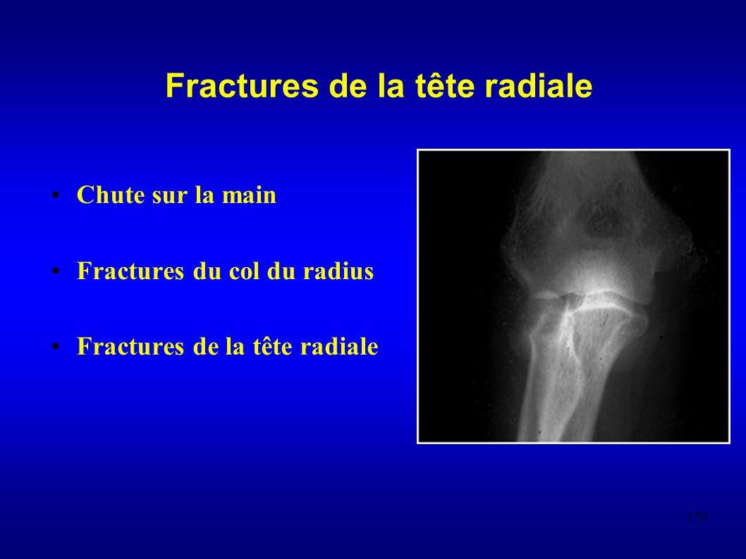 170 Chute sur la main Fractures du col du radius Fractures de la tête radiale