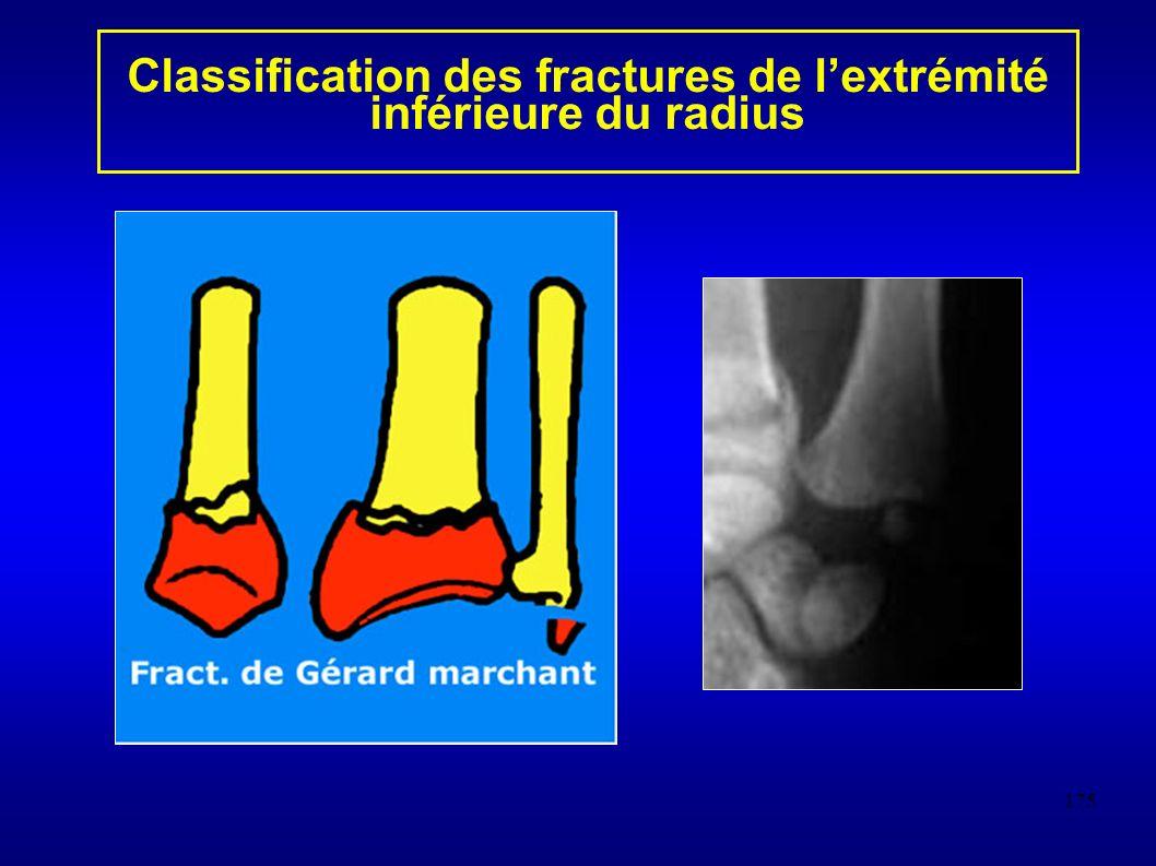 175 Classification des fractures de lextrémité inférieure du radius