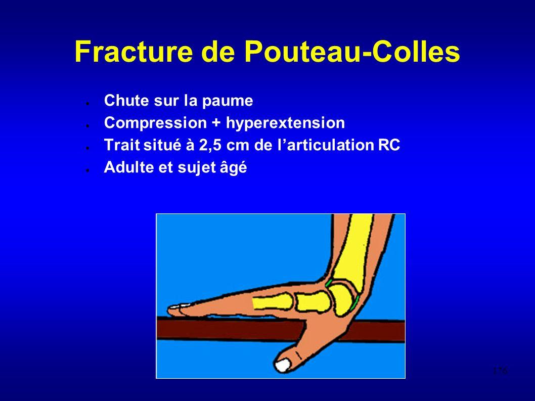 176 Fracture de Pouteau-Colles Chute sur la paume Compression + hyperextension Trait situé à 2,5 cm de larticulation RC Adulte et sujet âgé