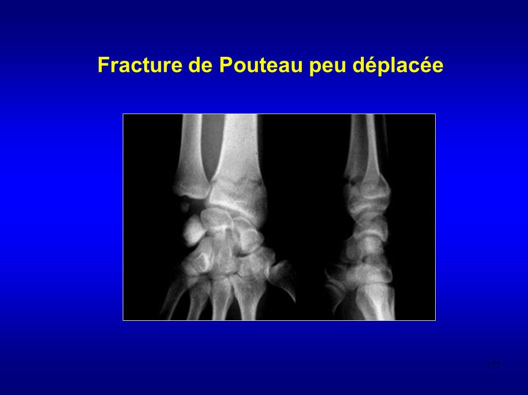 177 Fracture de Pouteau peu déplacée