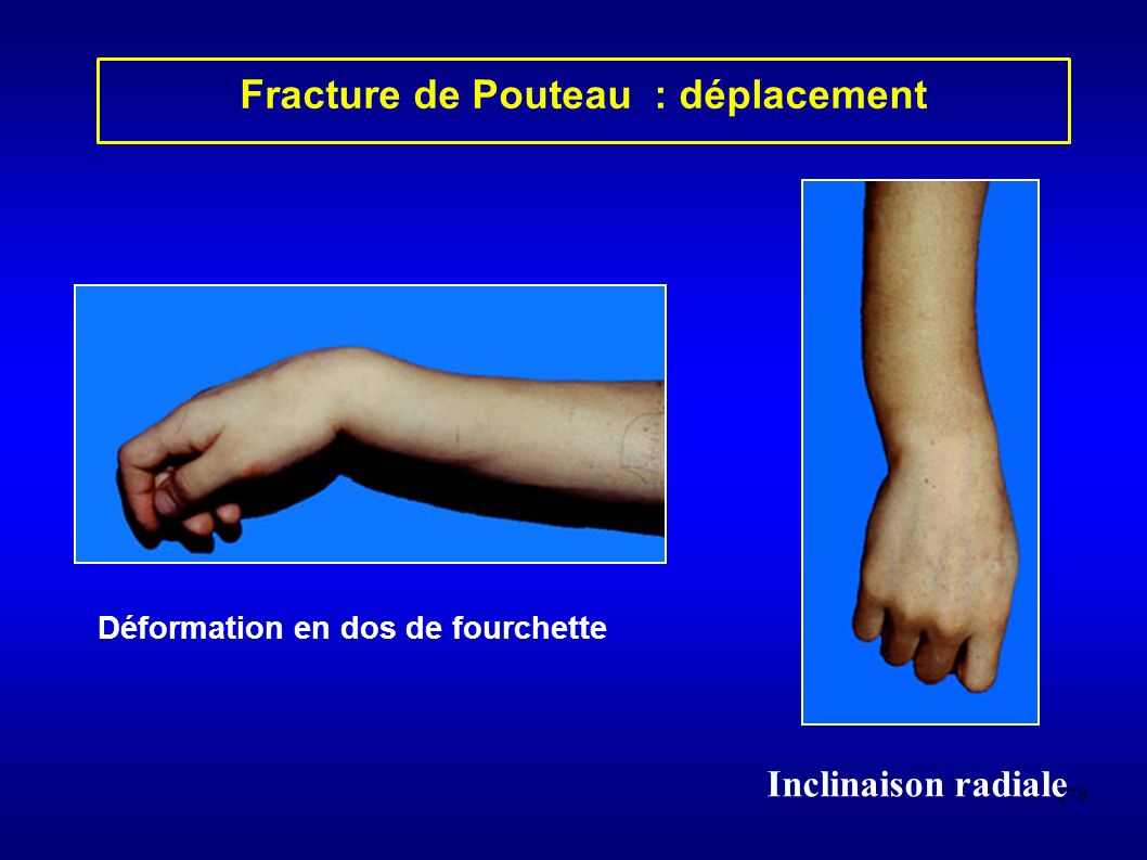 178 Fracture de Pouteau : déplacement Déformation en dos de fourchette Inclinaison radiale